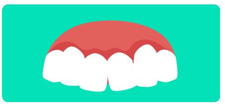 A má-oclusão, por sua vez, não possibilita esse encaixe entre as arcadas. É um problema que compromete o sistema mastigatório e as estruturas anexas, como dentes, gengivas, ossos e músculos.