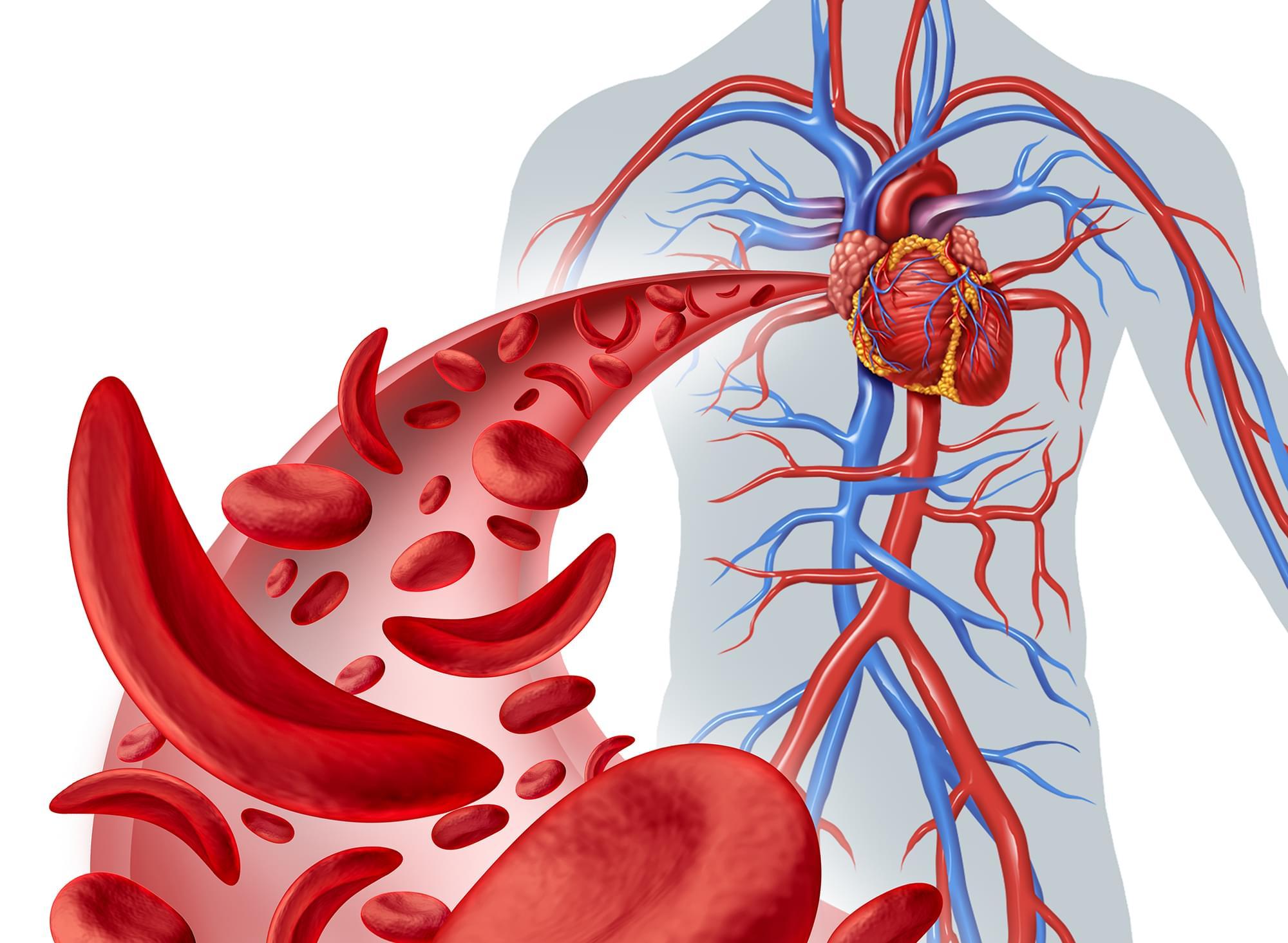 Anemia Facilforme