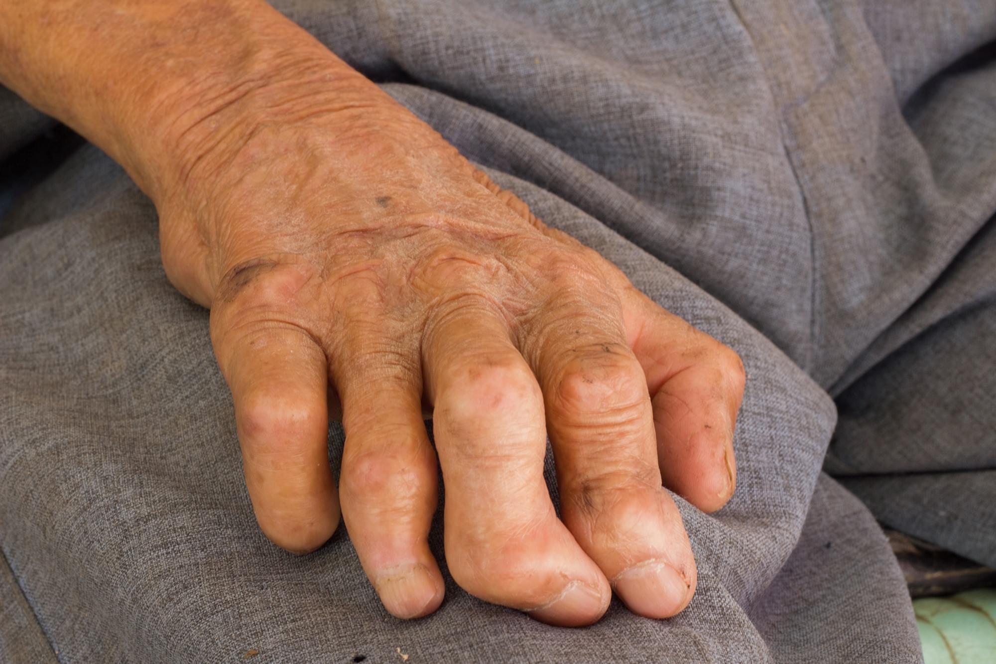 Janeiro Roxo: Hanseníase tem cura